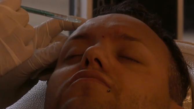 Video: botox behandeling van Michael