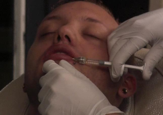 Vervolg botox behandeling Michael