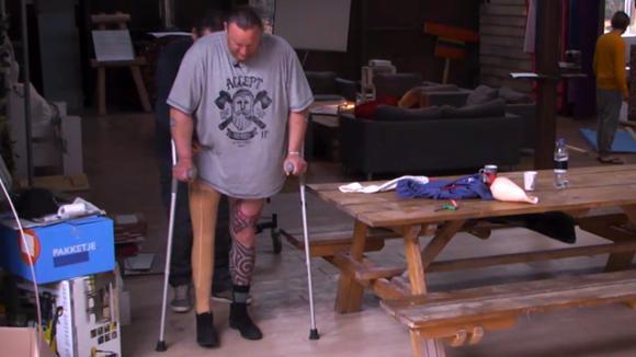 Bronno krijgt een nieuwe prothese